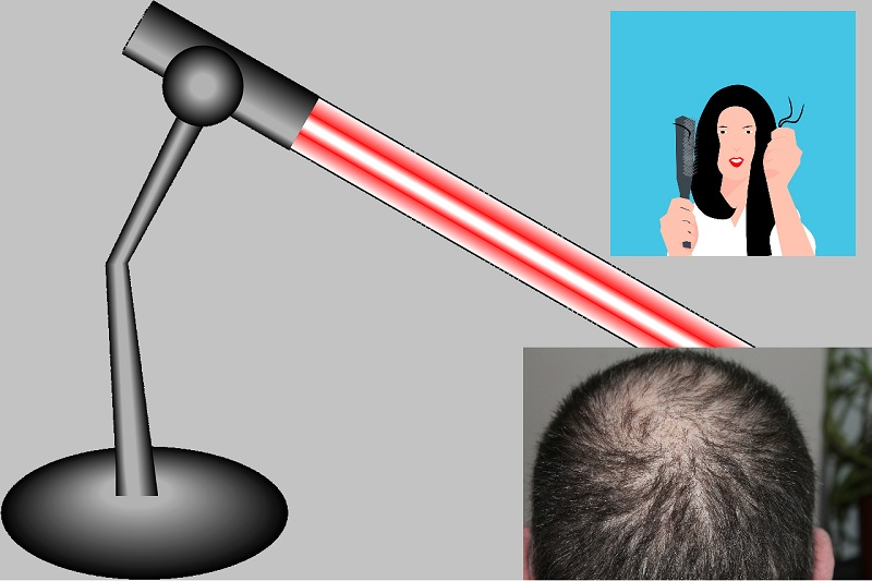 Best red light therapy device for hair loss