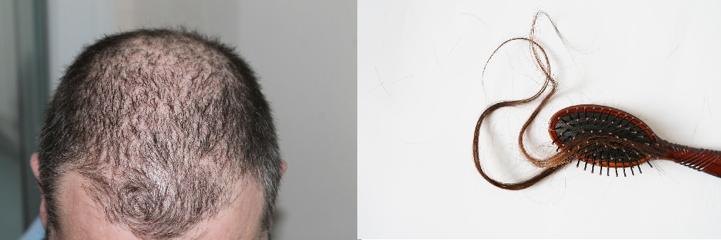 Does laser light therapy work for hair loss