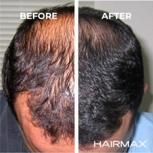 HairMax Ultima 12 before and after